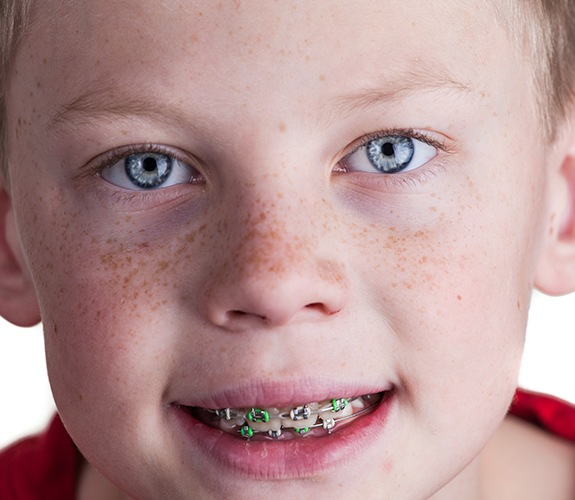 Child with phase one pediatric orthodontic treatment